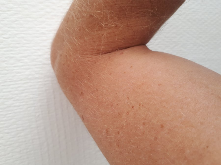 user.bodyParts.arms man